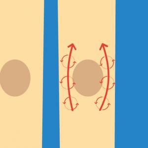 Beispiel für NOVAFON Anwendung bei arthrose